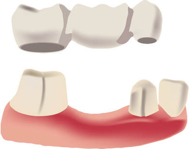dental bridges calgary