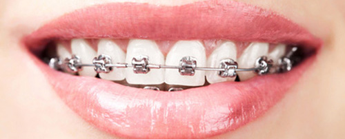 Braces (Orthodontia)