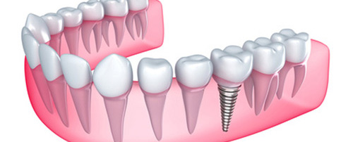 dental implant calgary