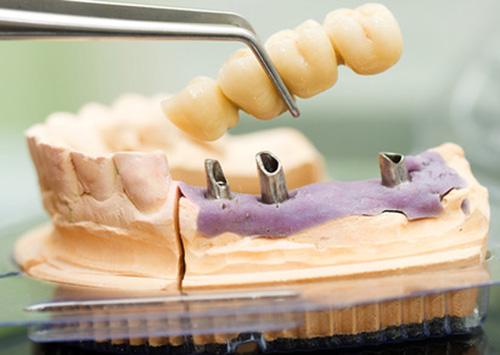 denture in calgary