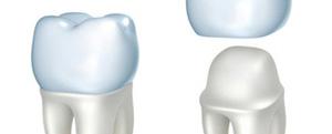 Calgary Dental extraction