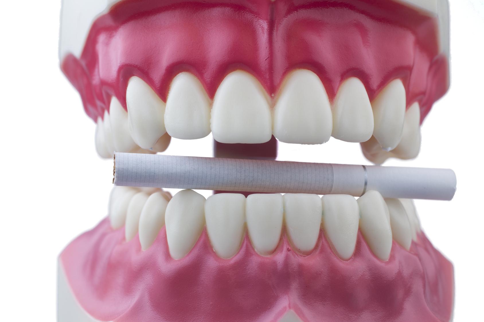 oral cancer calgary