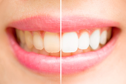 calgary teeth whitening